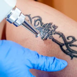 Tattoo removal in Winnipeg